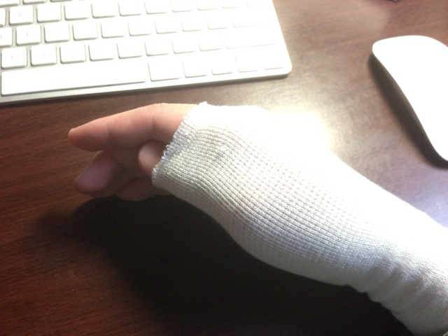 右手親指の靭帯を痛めてた
